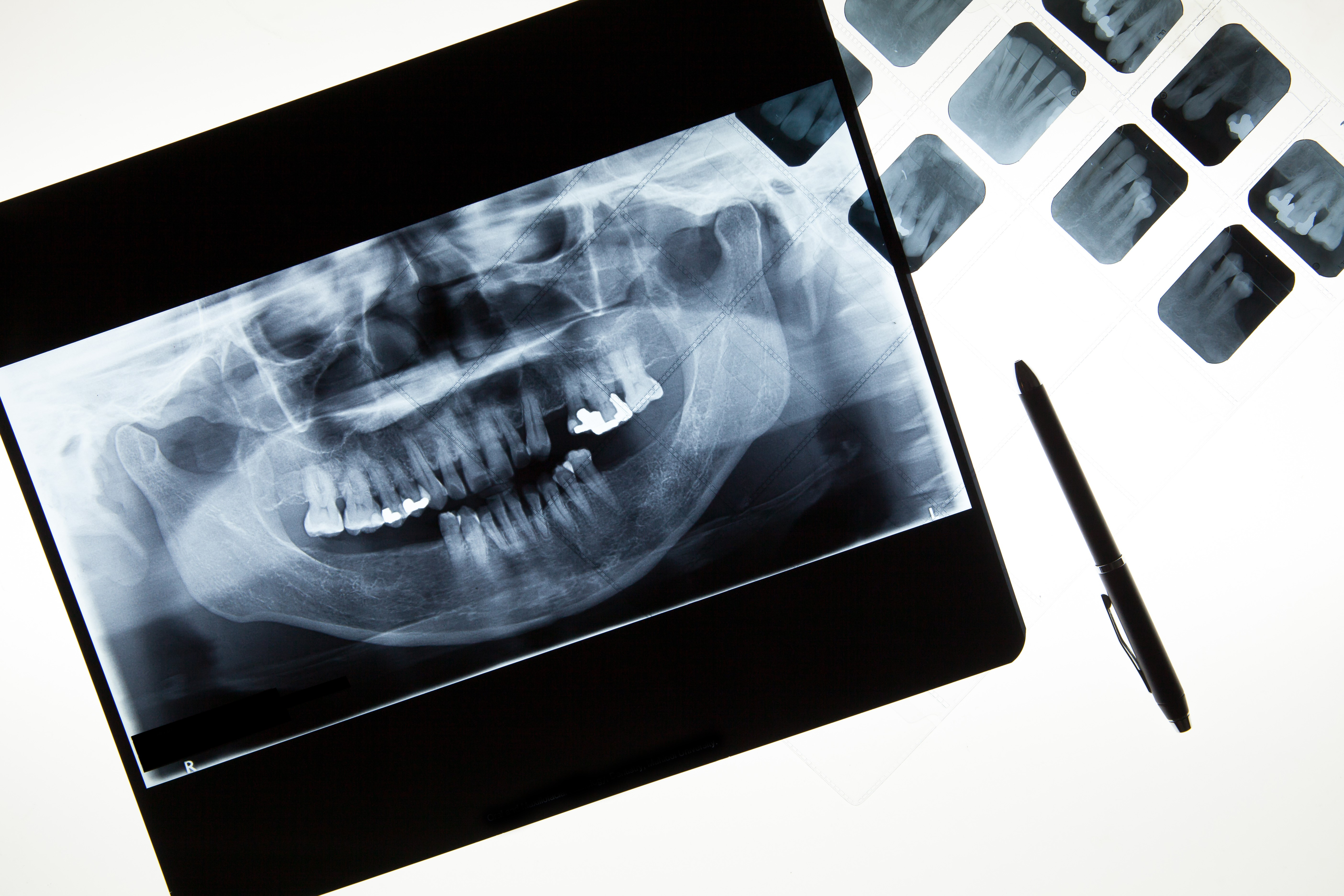 equipment dental | Excel Capital